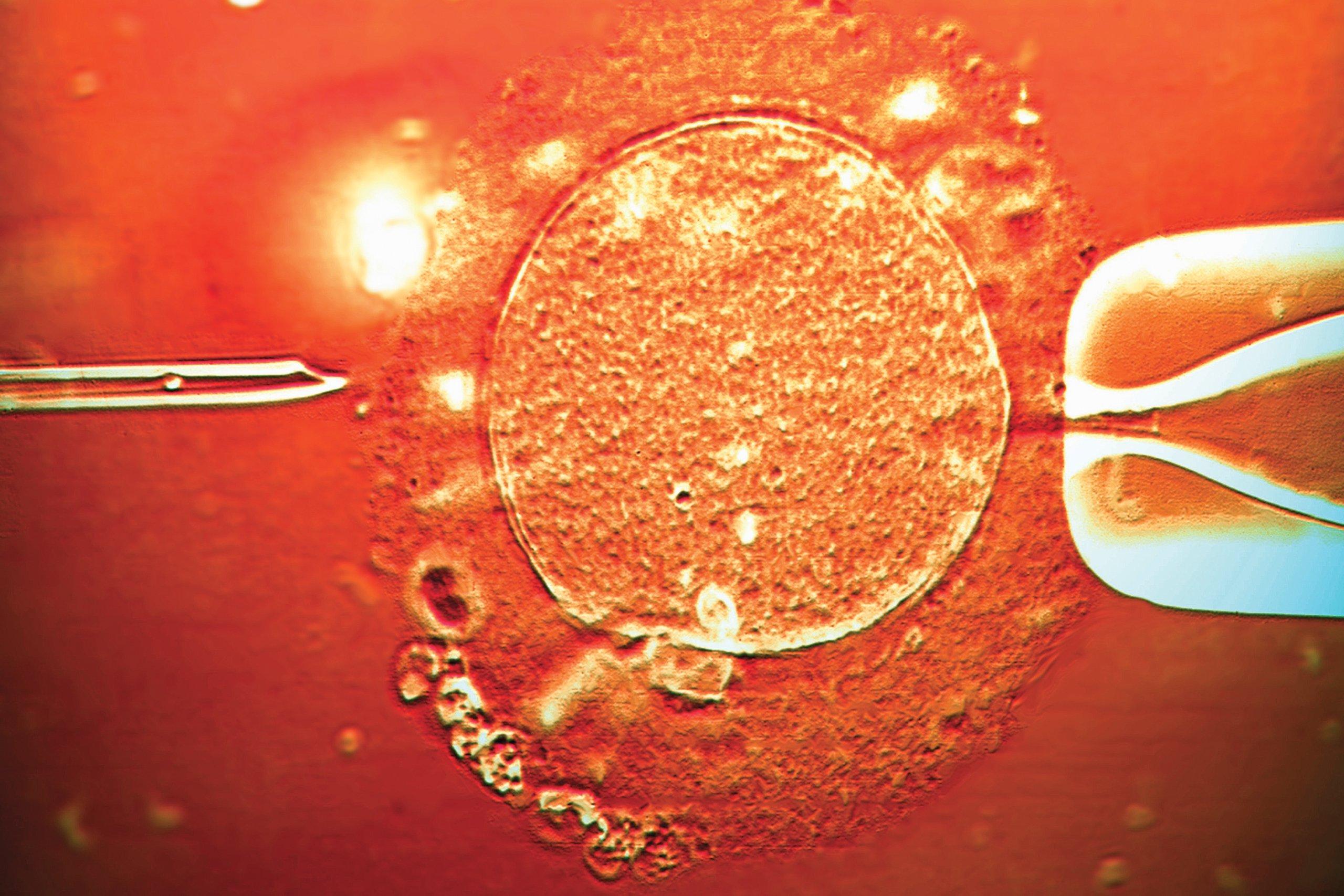 sepkowitz-nm0421-adopting-embryo-tease